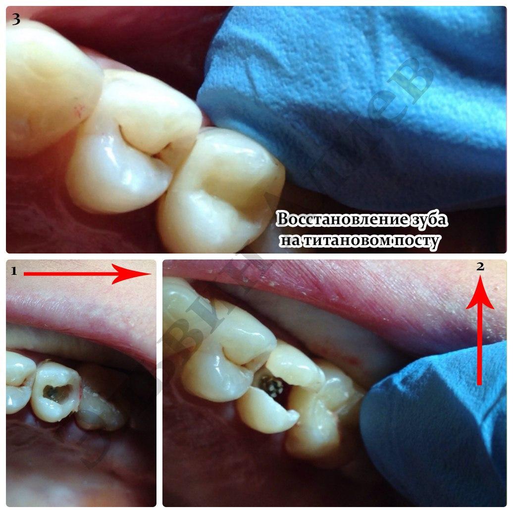 Восстановление зуба на титановом посту